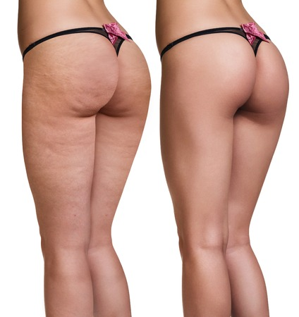 cellulite reduction sydney, cellulite treatments sydney, sydney